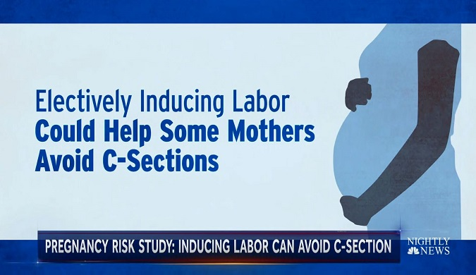 2018 Study Finds Inducing Labor May Help Some Women Avoid C